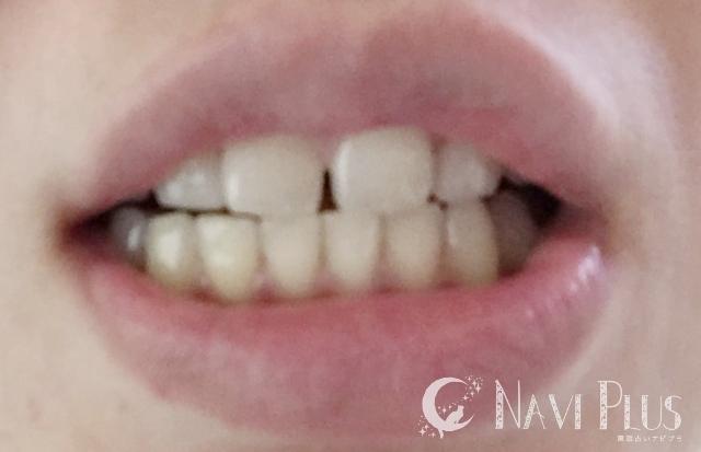 ホワイトニング後は、歯全体にツヤが出て、トーンが1段階アップ!黄ばみ大分マシに!